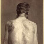 Plecy skazanego na karę knuta, 1891 rok